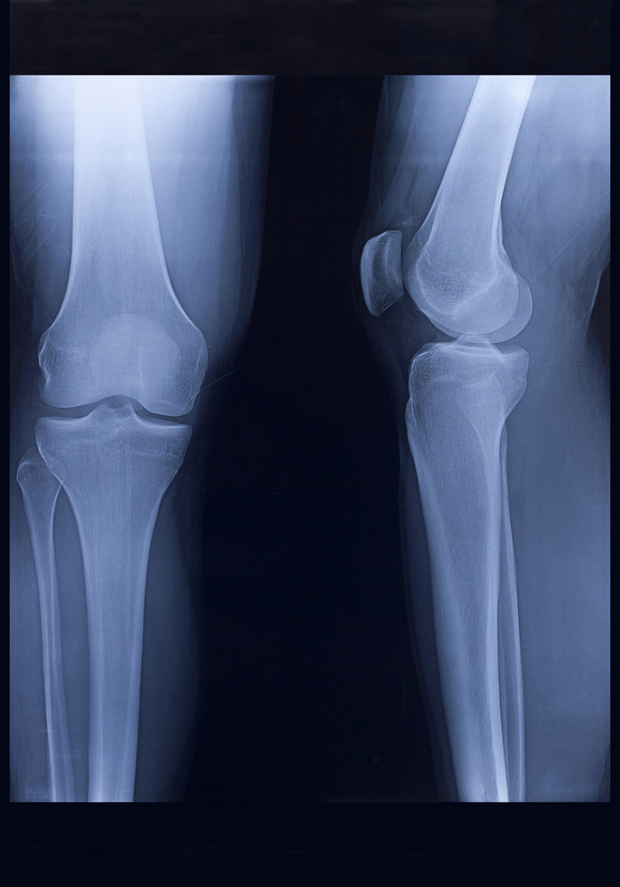 X-Ray, Human Knee and Leg